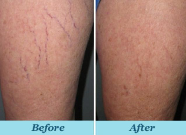 cure for spider veins