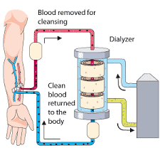 What is Hemodialysis?