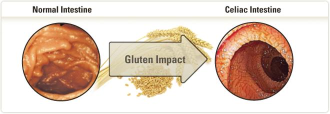 gluten-sensitive enteropathy ile ilgili görsel sonucu