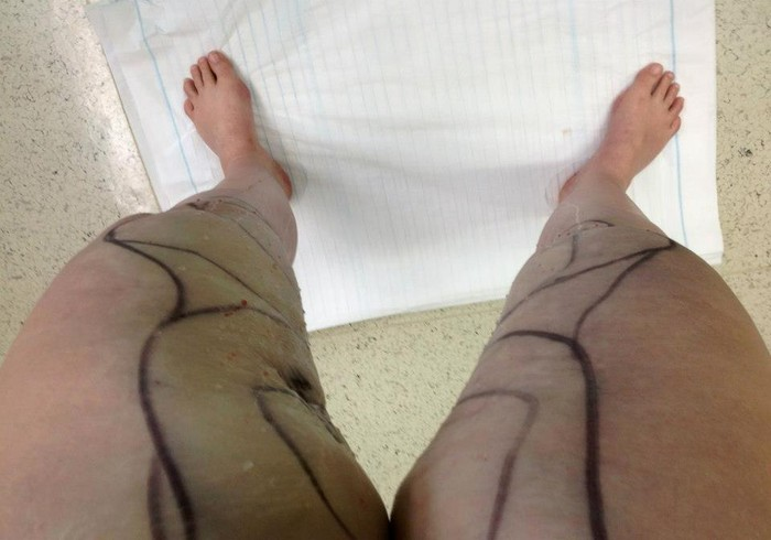Liposuction for Lipedema Webinar | Smore Newsletters