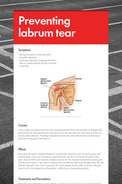 Preventing labrum tear