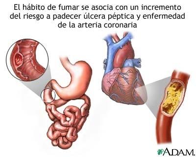 El tabaco tiene consecuencias en todos los sistemas del cuerpo