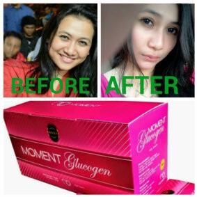 Kosmetik Cream Pemutih Pemutih Badan Distributor Resmi Dan Stockist