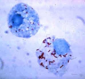 Picture of Pathogen
