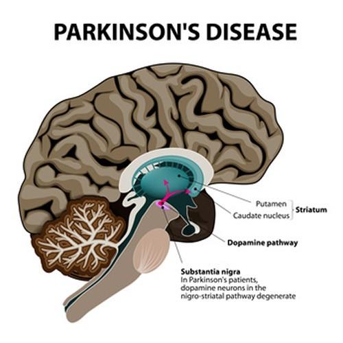 Understanding Parkinsons