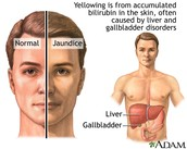What is jaundice?