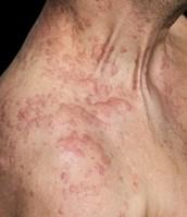 Allergische reactie =(