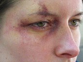 Punched Eye (Bruise 2)
