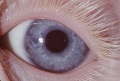 Eye Of A Person Who Has Albinism