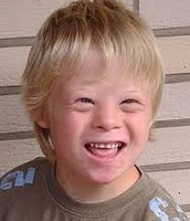 Picture of a kid with Down's Syndrome