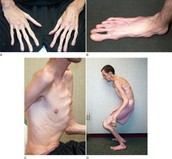 Example of Marfan Syndrome