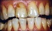 Teeth look like after smoking