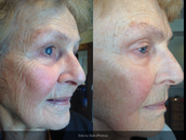 NeriumAD works. Yes, it is true! Check out the pictures of local people below.
