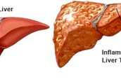 Normal and Inflamed Liver