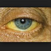 The Yellow Eye