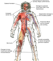 The effects of on your body from space radiation