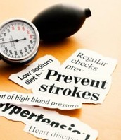 Treatment of Stroke Tucson