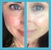 My skin using the EVER skin care regimen & revive eye lift