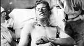 Mustard gas effects
