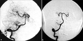 Digital Subtraction Angiography