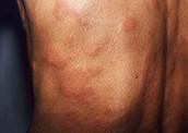Tuberculoid Leprosy
