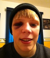 Me With a Black Eye After Wrestling
