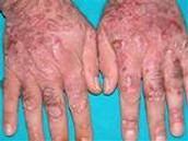 Hepatitis on Hands