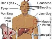 Yellow Fever Symptoms