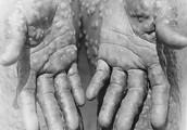 What is Monkeypox?