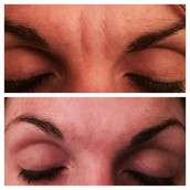 And the dreaded brow lines as well!