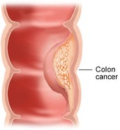 Effects of Colon and Rectal Cancer