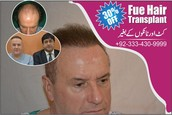 Hair Transplant In Lahore - The Real Truth!