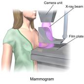 Diagram of a mammogram
