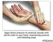 How to help form bleeding out....