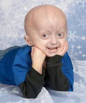 What is progeria? what are the symptoms?