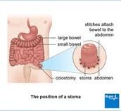 Wat is een stoma?