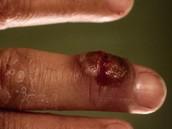 menselijke besmetting van zere bekjes