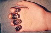 Black Plague in Fingers