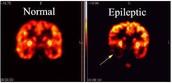 Basic Facts About Epilepsy