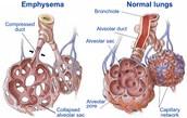 Preventing Emphysema/ COPD