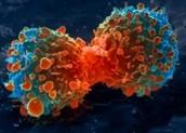 Brain Cancer Cells Dividing