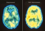 http://www.psychiatry.wustl.edu/depression/depression_facts.htm
