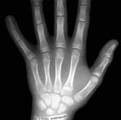 X-rays used in the medical field