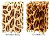 Osteo-perosis