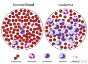 Introduction: What is Leukemia?