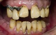 Teeth of a smoker!