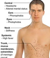 Bacterial Meningitis Symptoms