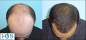 Hair transplant clinic in Delhi