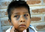 Broken blood vessels in eyes due to pertussis coughing