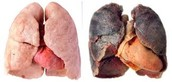regular and damaged lungs from smoking